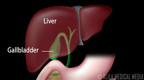Gallstones and Surgical Removal of Gallbladder